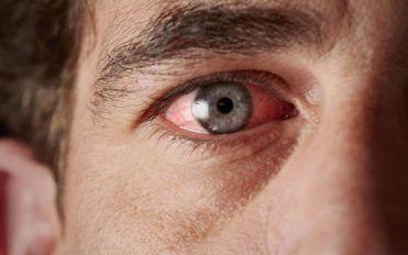 Sjogren's Syndrome- Causes and Symptoms