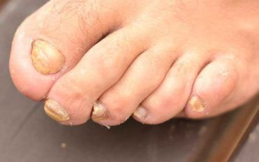 Tips to Treat Nail Fungus Effectively