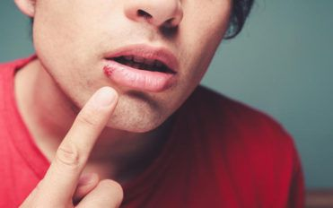 Top 4 FAQs about cold sores
