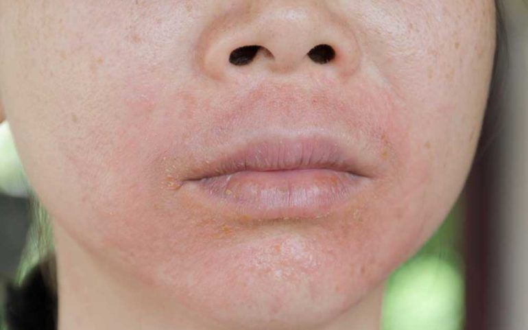 Treatment Methods for Lupus Skin Rashes