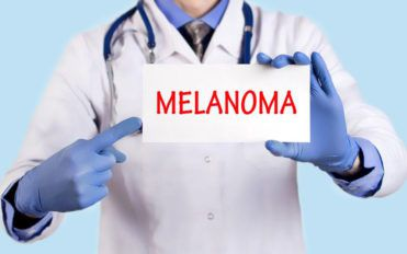 Understanding metastatic malignant melanoma
