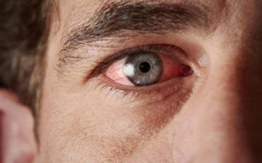 Understanding the causes of chronic dry eye