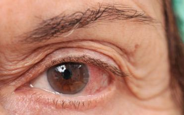 Ways of dealing with chronic dry eye disease