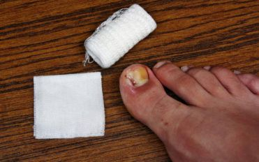 Ways to Treat Toe Nail Fungus During Pregnancy