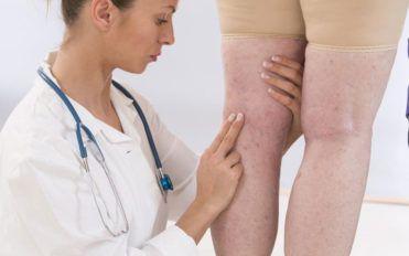 Ways to avoid thrombosis