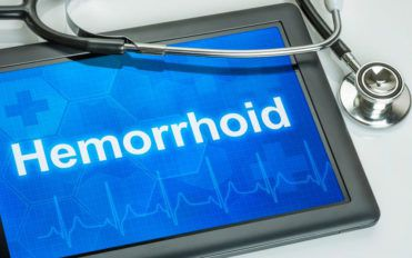 What are the causal factors of hemorrhoids?
