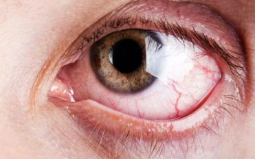 What are the common and rare symptoms of Graves' disease