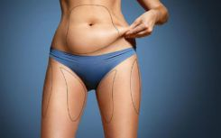 What is coolsculpting fat freezing?
