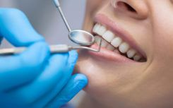 What to expect with dental implants