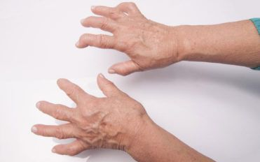 What you need to know about Rheumatoid Arthritis and Lupus