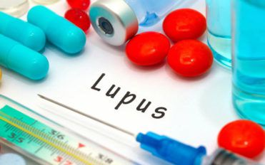 Remedies for Lupus