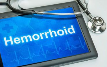 Hemorrhoids: What they are and their causes